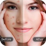 Download Download Face Blemish Remover – Smooth Skin & Beautify Face APK For Android 2021